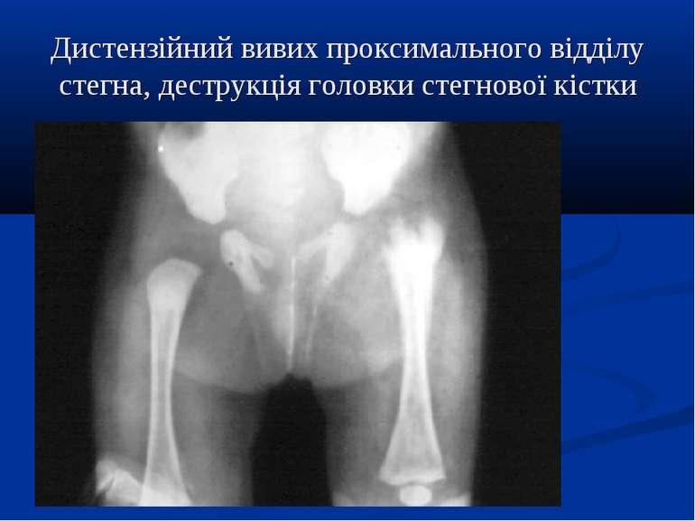 Дистензійний вивих проксимального відділу стегна, деструкція головки стегново...