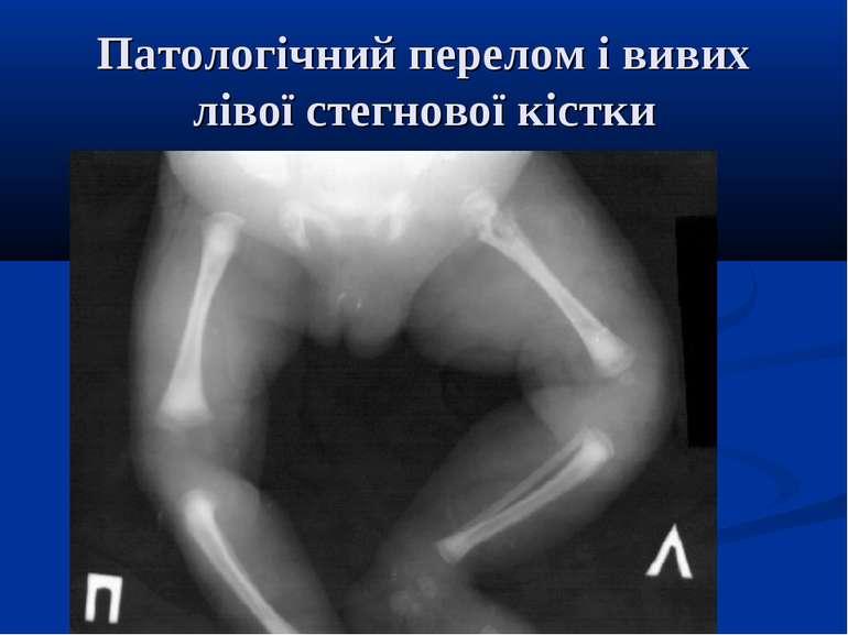 Патологічний перелом і вивих лівої стегнової кістки