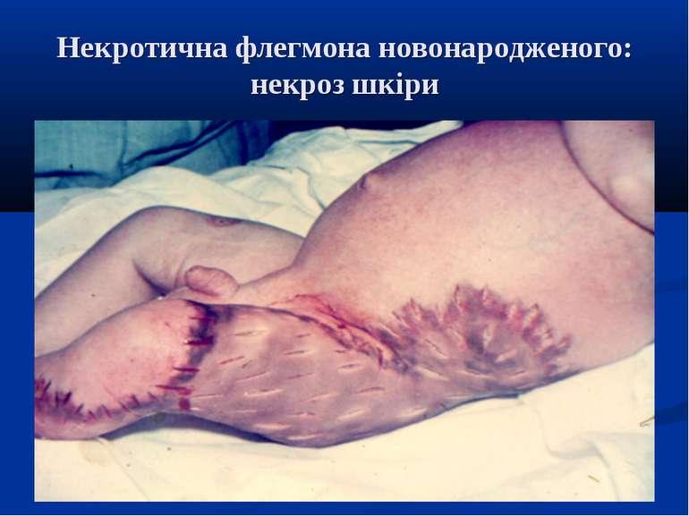Некротична флегмона новонародженого: некроз шкіри