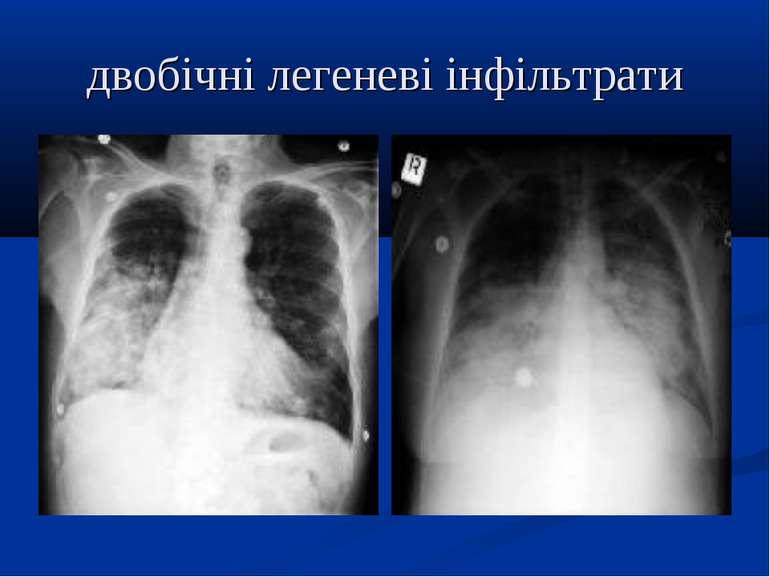 двобічні легеневі інфільтрати