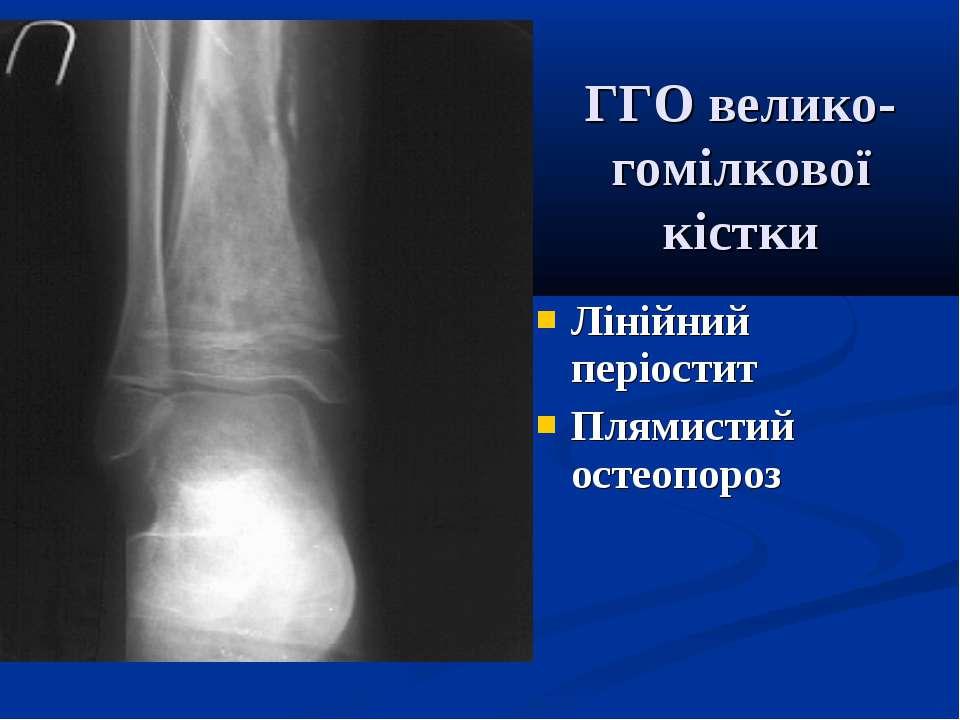 ГГО велико-гомілкової кістки Лінійний періостит Плямистий остеопороз
