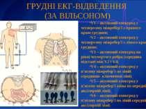 ГРУДНІ ЕКГ-ВІДВЕДЕННЯ (ЗА ВІЛЬСОНОМ) V1 – активний електрод у четвертому міжр...