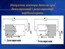 Напрямок вектора диполя при деполяризації і реполяризації кардіоміоцита