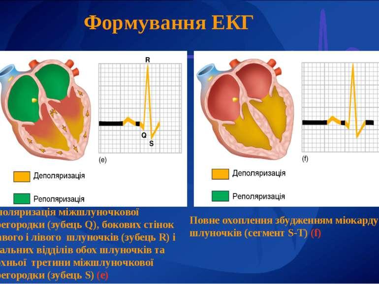 Формування ЕКГ Деполяризація міжшлуночкової перегородки (зубець Q), бокових с...