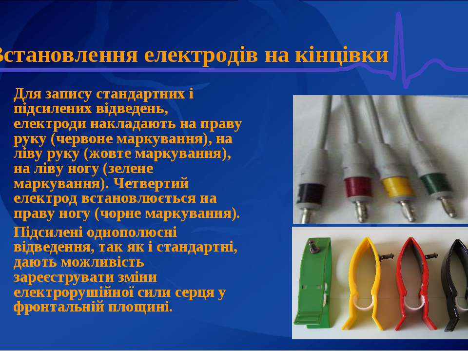 Встановлення електродів на кінцівки Для запису стандартних і підсилених відве...