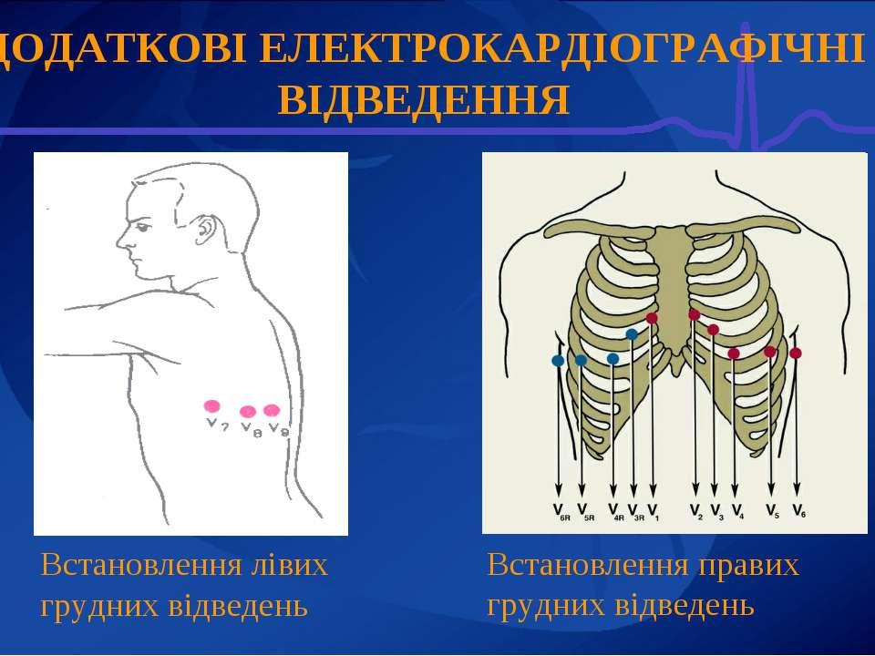 Встановлення лівих грудних відведень Встановлення правих грудних відведень ДО...