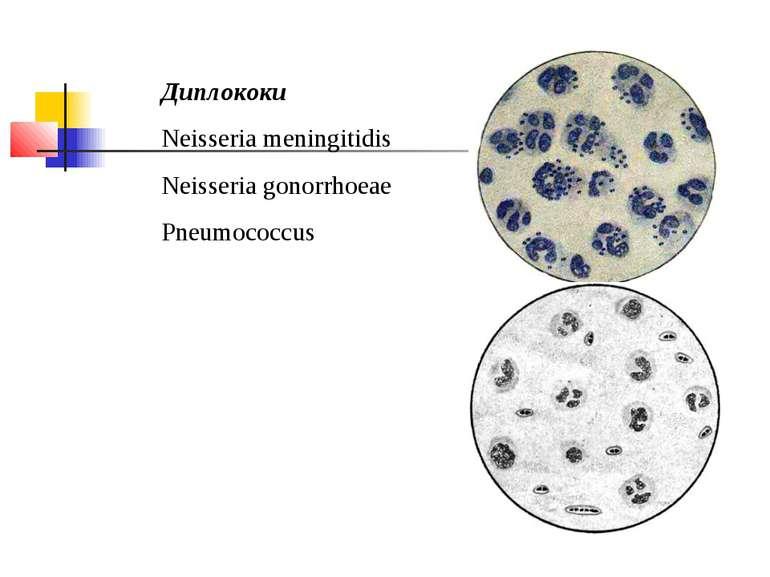 Диплококи Neisseria meningitidis Neisseria gonorrhoeae Pneumococcus