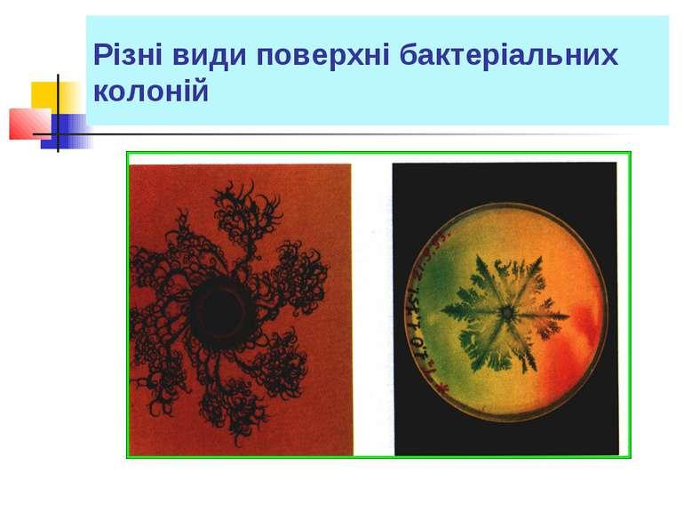 Різні види поверхні бактеріальних колоній