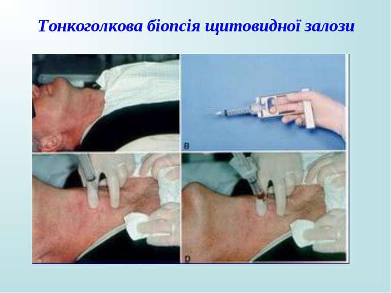 Тонкоголкова біопсія щитовидної залози