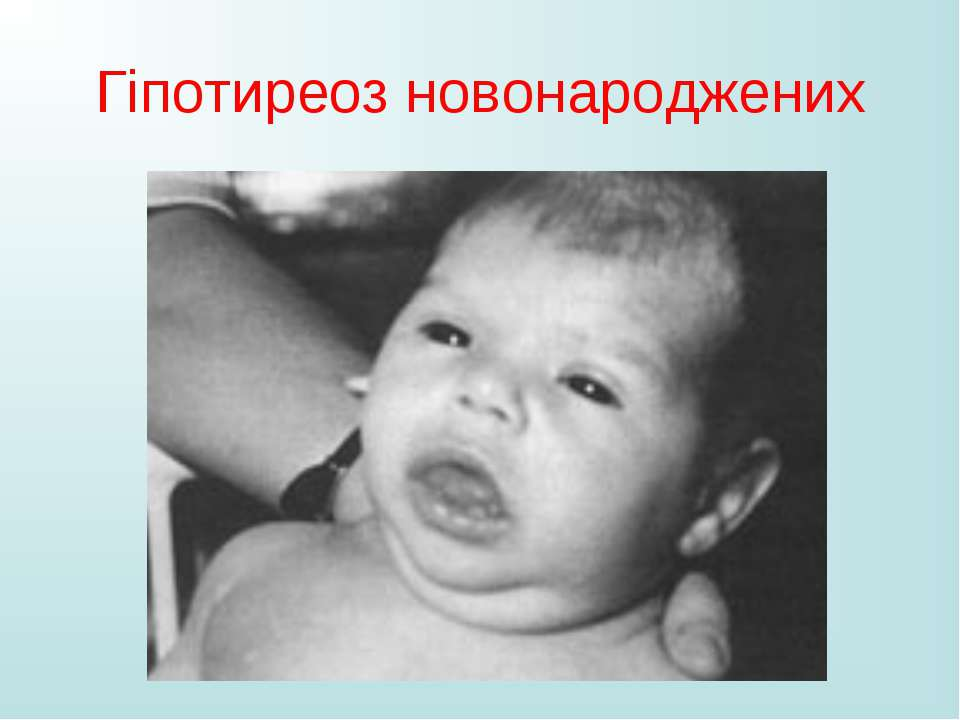 Гіпотиреоз новонароджених