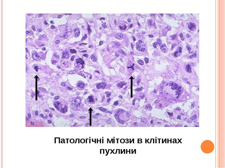 Патологічні мітози в клітинах пухлини