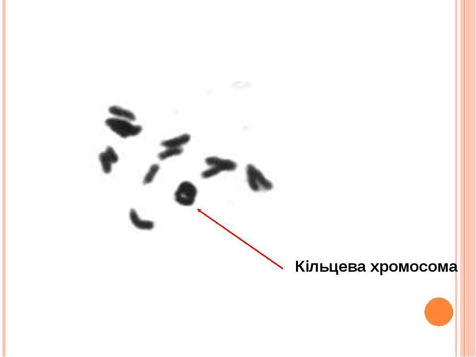 Кільцева хромосома
