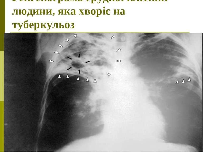 Ренгенограма грудної клітини людини, яка хворіє на туберкульоз