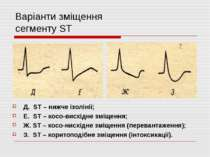 Варіанти зміщення сегменту ST Д. ST – нижче ізолінії; Е. ST – косо-висхідне з...