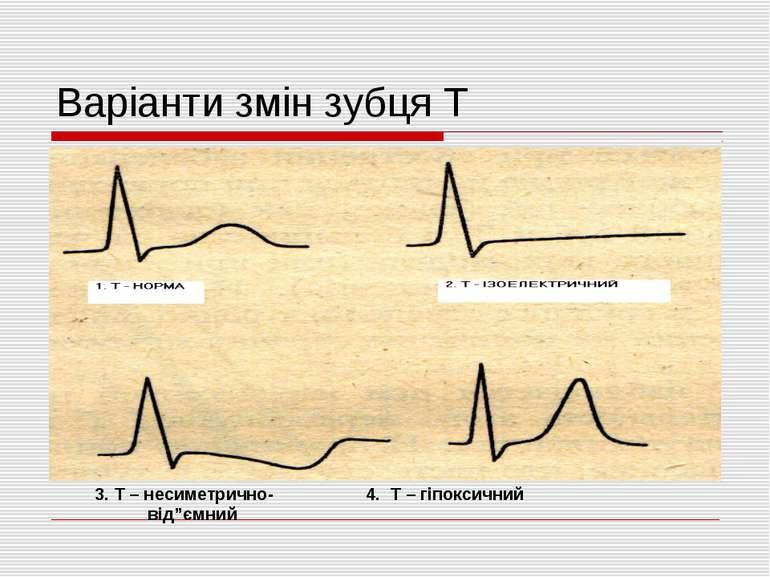 """Варіанти змін зубця Т 3. Т – несиметрично- 4. Т – гіпоксичний від""""ємний"""