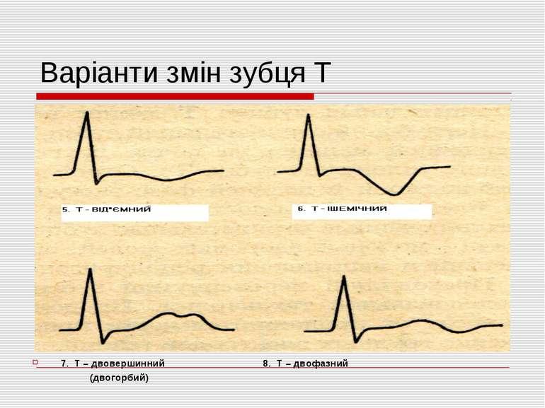 Варіанти змін зубця Т 7. Т – двовершинний 8. Т – двофазний (двогорбий)