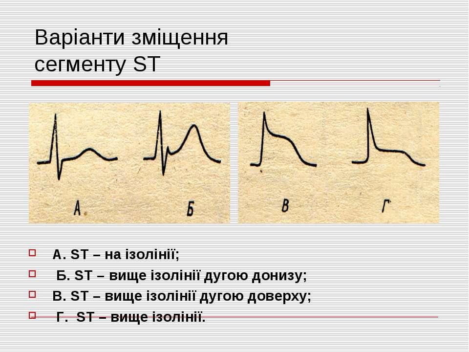 Варіанти зміщення сегменту ST А. ST – на ізолінії; Б. ST – вище ізолінії дуго...