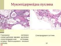 Мукоепідермоїдна пухлина * Порожнини заповнені слизеподібними масами, вистеле...
