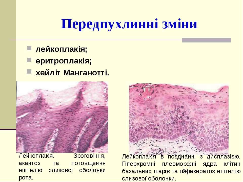 Передпухлинні зміни лейкоплакія; еритроплакія; хейліт Манганотті. Лейкоплакія...