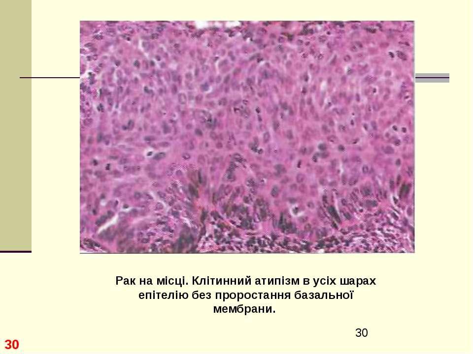 * Рак на місці. Клітинний атипізм в усіх шарах епітелію без проростання базал...