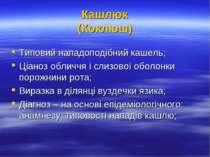 Кашлюк (Коклюш) Типовий нападоподібний кашель; Ціаноз обличчя і слизової обол...