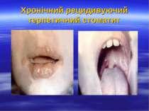 Хронічний рецидивуючий герпетичний стоматит