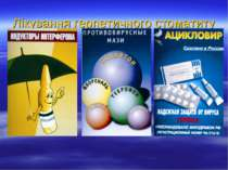 Лікування герпетичного стоматиту