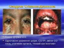Синдром Стівенса-Джонсона Важка форма БЕЕ Одночасне ураження шкіри, СОПР, змі...