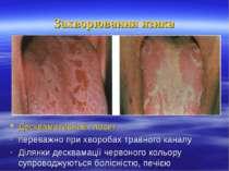 Захворювання язика Десквамативний глосит переважно при хворобах травного кана...