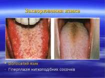 Захворювання язика Волосатий язик Гіперплазія ниткоподібних сосочків