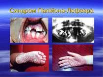 Синдром Папійона-Лефевра
