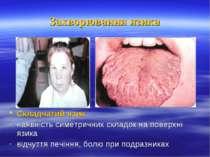 Захворювання язика Складчатий язик наявність симетричних складок на поверхні ...