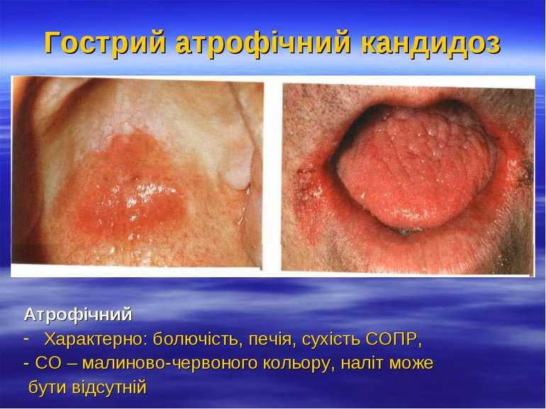 Гострий атрофічний кандидоз Атрофічний Характерно: болючість, печія, сухість ...