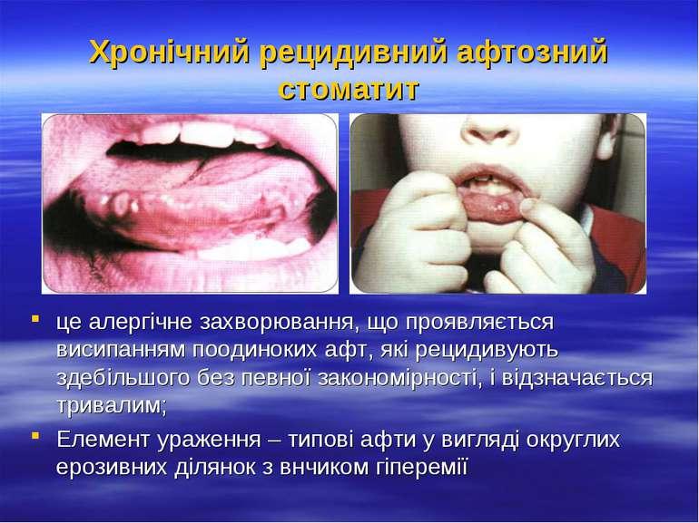 Хронічний рецидивний афтозний стоматит це алергічне захворювання, що проявляє...
