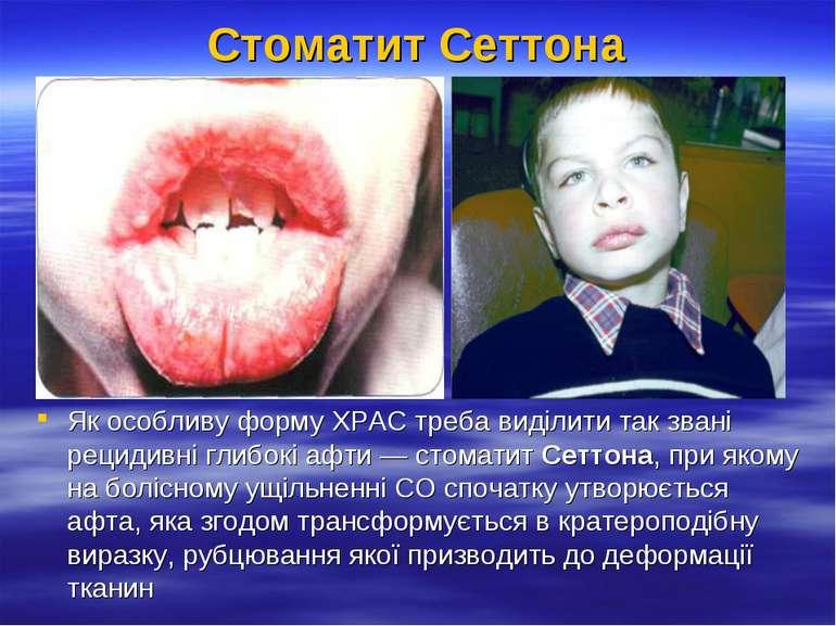Стоматит Сеттона Як особливу форму ХРАС треба виділити так звані рецидивні гл...
