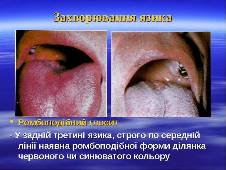 Захворювання язика Ромбоподібний глосит - У задній третині язика, строго по с...