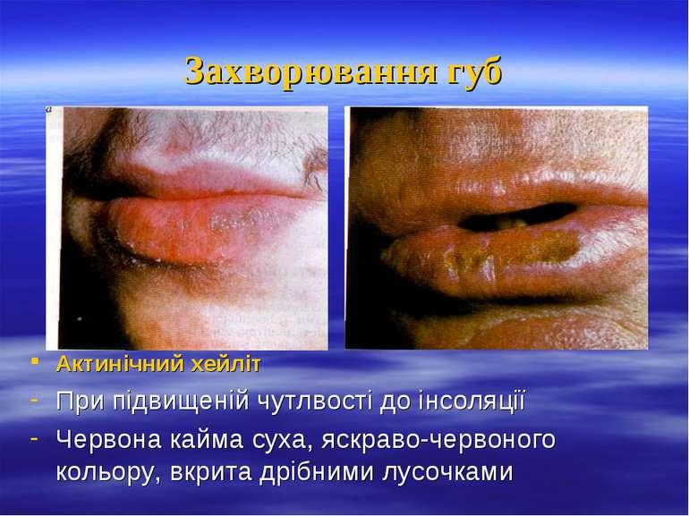 Захворювання губ Актинічний хейліт При підвищеній чутлвості до інсоляції Черв...