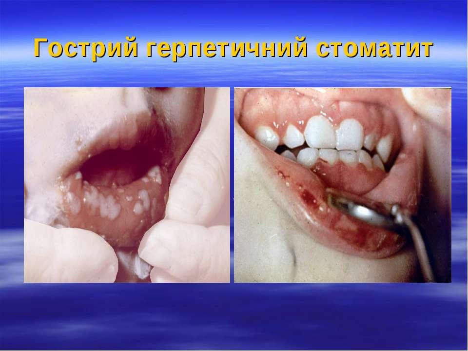Гострий герпетичний стоматит