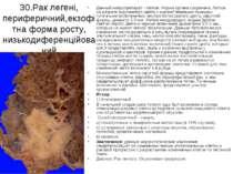30.Рак легені, периферичний,екзофітна форма росту, низькодиференційований Дан...