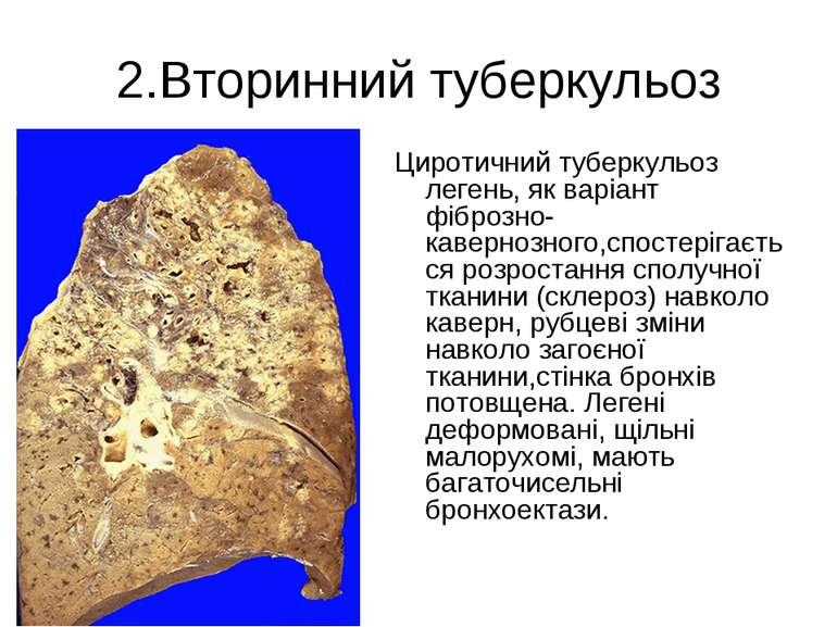 2.Вторинний туберкульоз Циротичний туберкульоз легень, як варіант фіброзно-ка...