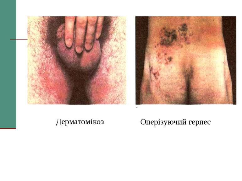 Дерматомікоз Оперізуючий герпес