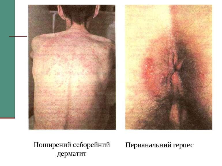 Поширений себорейний дерматит Перианальний герпес
