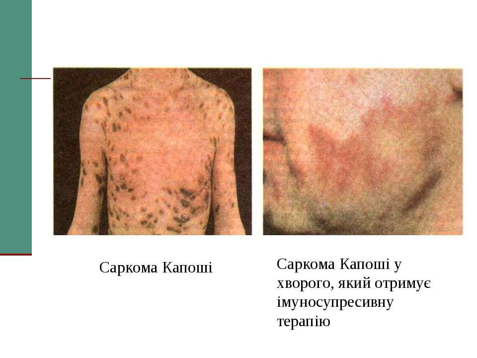 Саркома Капоші Саркома Капоші у хворого, який отримує імуносупресивну терапію