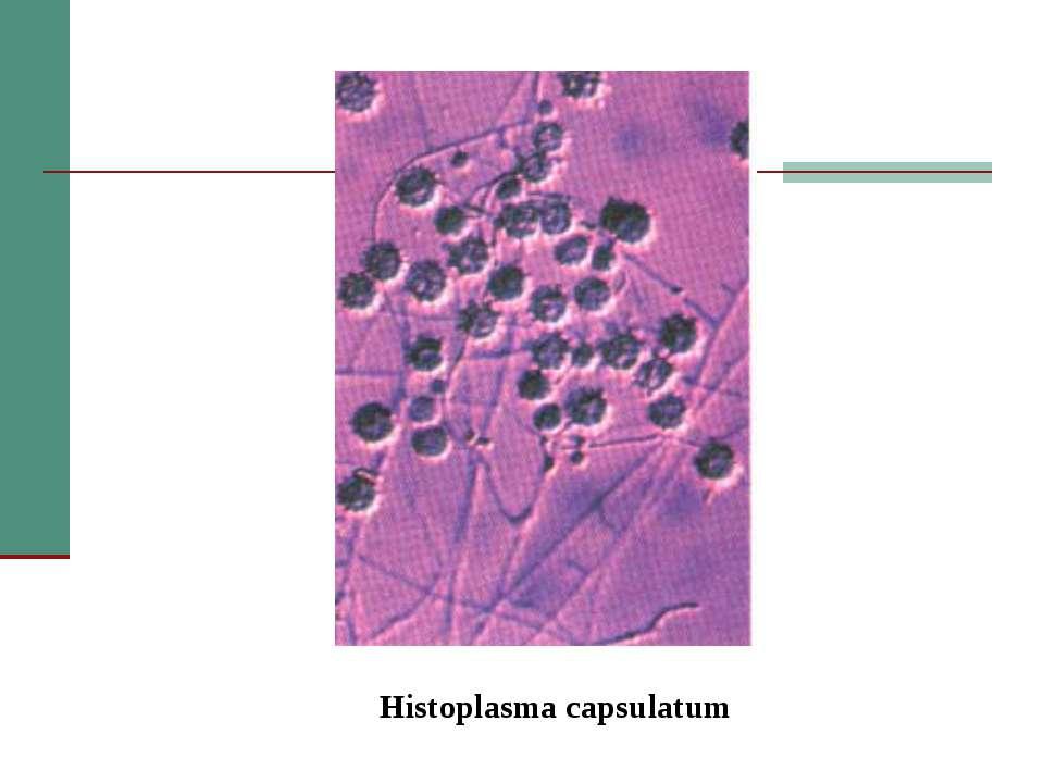 Histoplasma capsulatum