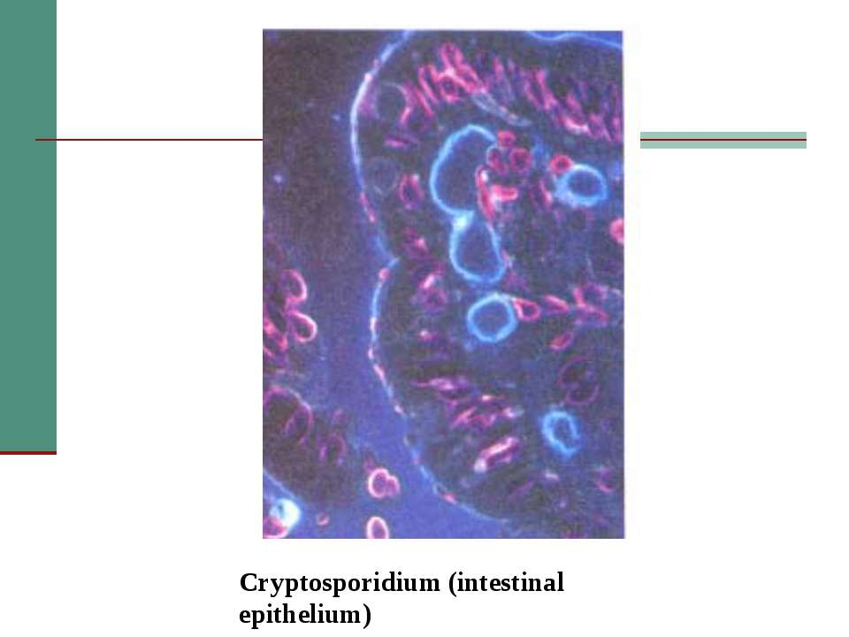 Cryptosporidium (intestinal epithelium)