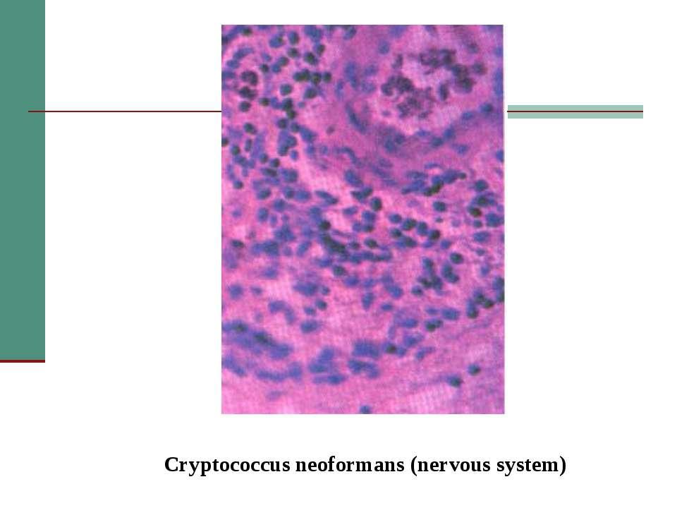 Cryptococcus neoformans (nervous system)
