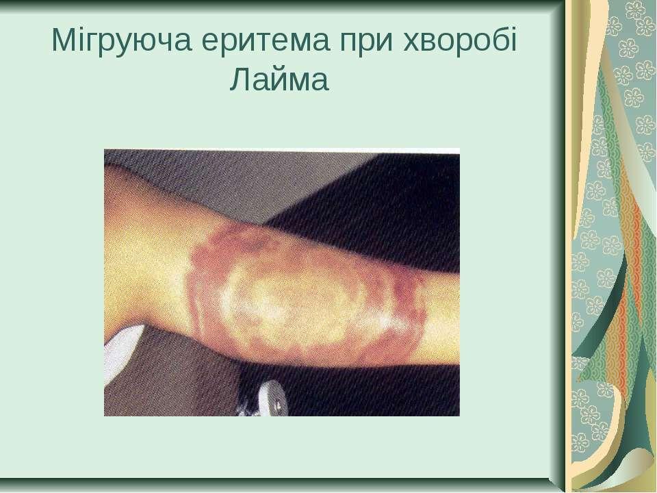 Мігруюча еритема при хворобі Лайма