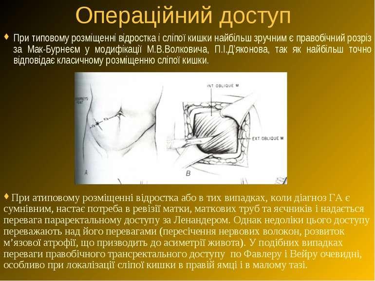 Операційний доступ При типовому розміщенні відростка і сліпої кишки найбільш ...