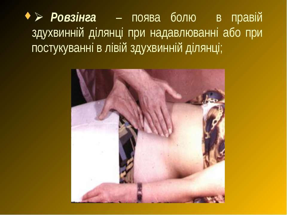 Ø Ровзінга – поява болю в правій здухвинній ділянці при надавлюванні або при ...