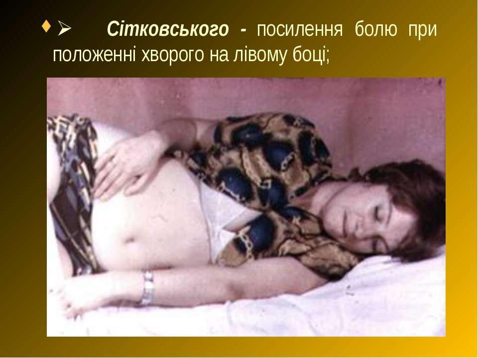 Ø Сітковського - посилення болю при положенні хворого на лівому боці;